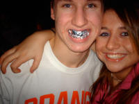 Tooth Grill Picture